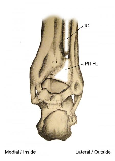 High Ankle Sprain Figure 1
