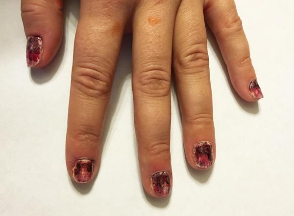 zombie-nails, zombie manicure