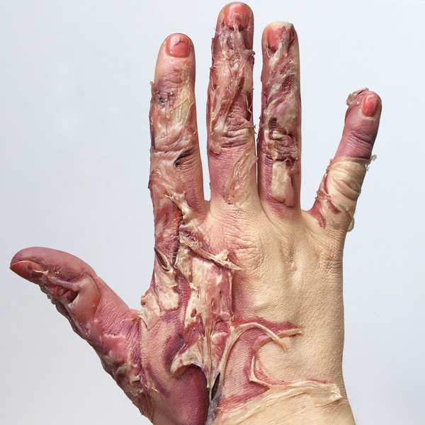 Burned Hand sfx makeup