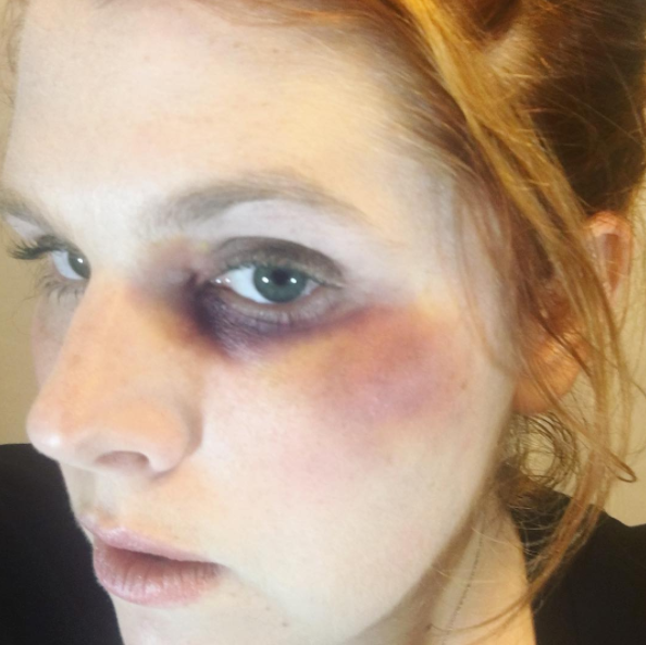 Bruise and black eye makeup